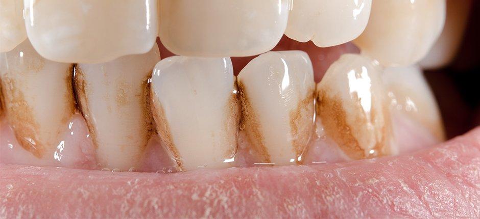 Mancha Nos Dentes Os 5 Principais Tipos Veja Agora Md Frossard