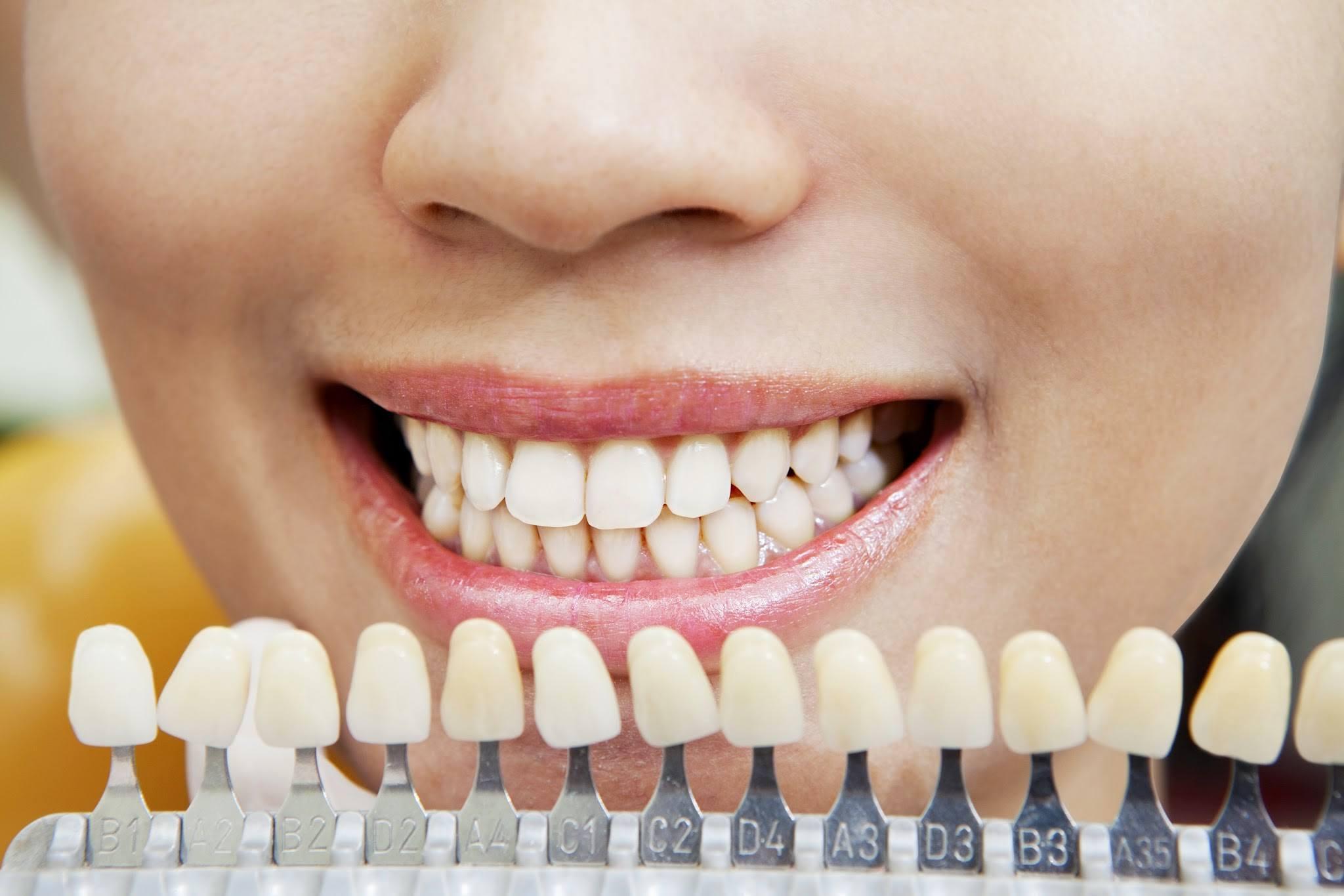 Como Clarear Os Dentes O Que Todo Mundo Deveria Saber Md