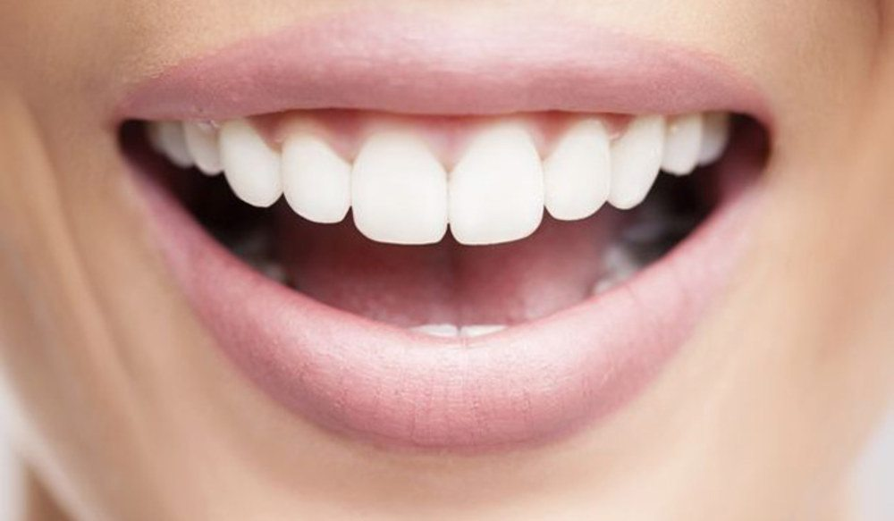 5 Dicas Para Clarear Os Dentes Mude Seu Sorriso Md Frossard